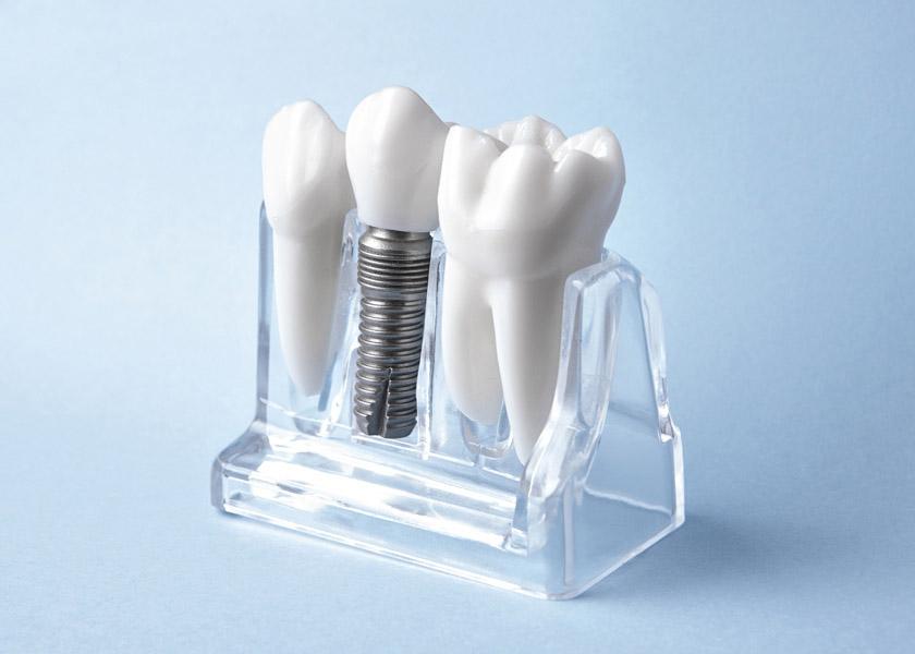 Implantologia - Studio Dentistico Perin Michele