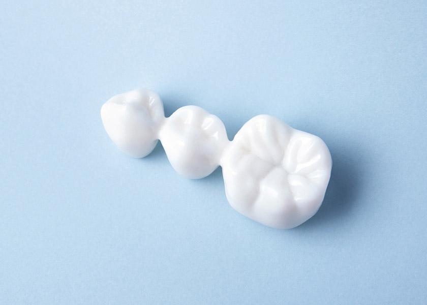Protesi fissa - Studio Dentistico Perin Michele